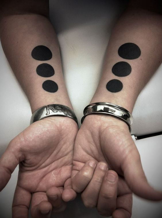 Matching black circles on both forearms